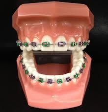 Winnetka Dentat  modernized and innovative services like orthodontist braces, orthodontist dentures, orthodontist implants as well as orthodontist invisaligns are world best in the entire part of Southern California. Our orthodontist in Encino CA.Call us at (818) 676-0970 and visit: http://www.winnetkadental.com/orthodontist/tooth-doctor-encino-ca-91316/ .