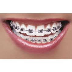 pretty gossip: How to whiten teeth with Braces.