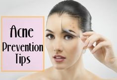 How to Prevent Acne - Acne Skin Care Tips