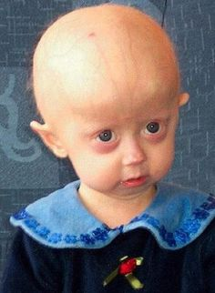 Progeria Disease Case Study - Major Cases of Progeria Worldwide