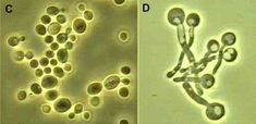 Another example of Candida albicans under the microscope