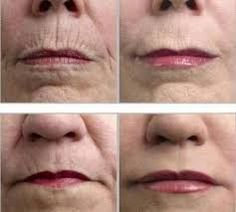 Where Can I Buy Jeunesse Instantly Ageless Eye Cream ? Come to Our Official Website and You Could Buy Best Jeunesse Instantly Ageless Anti Aging Eye Cream, Best Anti Aging, Anti Aging Cream, Anti Aging Skin Care, Nerium Results, Acute Care, Prevent Wrinkles, Rodan And Fields, How To Get Rid, Signs
