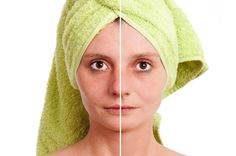 How To Shrink Pores | Effective & Natural Ways To A Youthful Skin