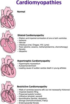 Types of Cardiomyopathies