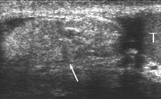 έ ό Groin Tumor Ultrasound Hernias