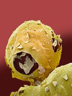 Aspartame, microscopic