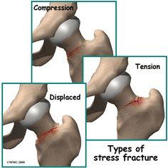 hip stress fracture