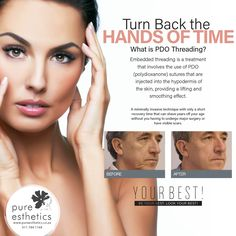 "Turn Back the Hands of Time What is PDO Threading? Embedded threading is a treatment that involves the use of PDO (polydioxanone) sutures that are injected into the hypodermis of the skin, providing a lifting and smoothing effect. ""A minimally invasive technique with only a short recovery time that can shave years off your age without you having to undergo major surgery or have visible scars. Contact us on 011 784 1168 for more information or appointment. #love #health #motivation #beautiful…"