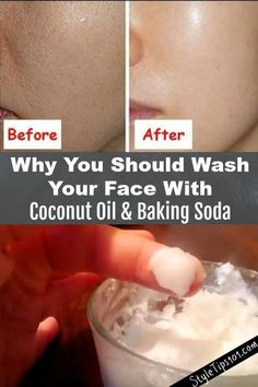 This baking soda and coconut oil face mask for acne scars will deeply cleanse the skin, exfoliate, and prevent acne all in one! You've undoubtedly seen tons of baking soda and coconut oil face mask recipes all over the Internet, but have you actually Baking With Coconut Oil, Coconut Oil For Face, Coconut Oil Beauty, Coconut Oil Face Cleanser, Diy Coconut Oil Hair Mask, Uses For Coconut Oil, Coconut Oil Makeup Remover, Coconut Oil Diys, Coconut Oil Scars