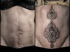 275 Best Tattoos To Hide Scars Images