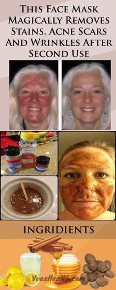 Natural Acne Remedies This Face Mask Magically Removes Stains Acne Scars And Wrinkles After Second Use Acne Face Mask, Acne Skin, Acne Scars, Face Masks, Body Acne, Face Face, Cystic Acne Treatment, Back Acne Treatment, Acne Treatments