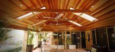 Image result for pergola lighting  for raked roof