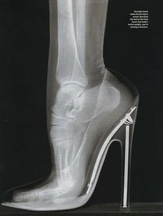 X-ray of foot in high heels- no wonder I hate wearing them!  I would love to see an x-ray of how the spine changes when wearing heels, too!