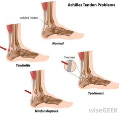 Achilles tendonitis is a common overuse injury in runners. Sufferers often experience a dull or sharp pain along the Achilles tendon--usually close to the heel on the back of the ankle. Ankle Pain, Heel Pain, Foot Pain, Clinique Chiropratique, Tendon Tear, Tendinitis, Edema, Running Injuries, Physical Therapy