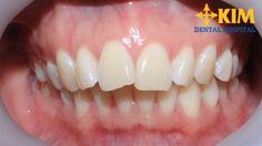 Răng hô là khuyết điểm của hàm răng nhưng lại có ảnh hưởng rất lớn đến toàn khuôn mặt. Các cách chỉnh răng hô dưới đây sẽ giúp bạn khắc phục chúng một cách hiệu quả nhất, trả lại cho bạn một khuôn mặt cân đối,