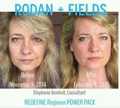 Redefine Power Pack Aging redefined, bye bye puffy eyes, uneven skin tone hello gorgeous skin hmonson.myrandf.com