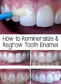 How to Remineralize & Regrow Tooth Enamel -- YOU CANNOT REGROW ENAMEL!!!! STOP LYING TO PEOPLE. ENAMEL CANNOT BE GROWN BACK ONCE IT IS LOST.