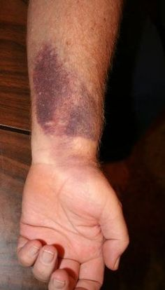 Sabre bruises.   13 Things All Winter Guard Performers Understand
