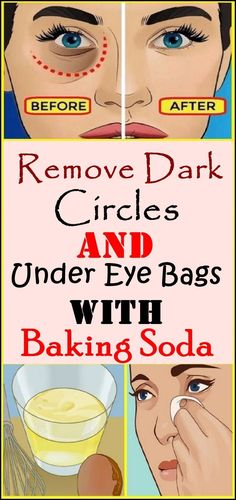 Remove Dark Circles & Under Eye Bags & Baking Soda & Lemon! Remove Dark Circles & Under Eye Bags & Baking Soda & Lemon! The post Remove Dark Circles & Under Eye Bags & Baking Soda & Lemon! & Home remedies appeared first on Hautproblem . Tips And Tricks, Magic Tricks, Fitness Workouts, Concealer, Dry Eyes Causes, Vaseline Beauty Tips, Beauty Hacks For Teens, Baking Soda And Lemon, Baking Soda Shampoo
