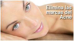 mejor tratamiento para el acne