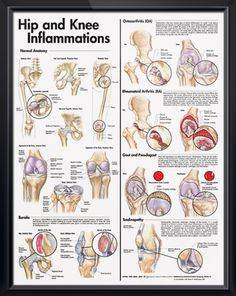 Hip and Knee Inflammations poster