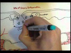 ▶ Immunology - Innate Immunity (Diapedesis) - YouTube [high school level]
