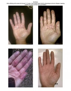 Curing Eczema with dōTERRA Essential Oils  Used dōTERRA's Melaleuca and Lavender Essential Oils mixed with raw coconut oil on  hands.