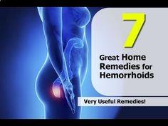 How To Cure Hemorrhoids Without Surgery - Katja Gratt