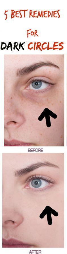 No need to try out hundreds of different dark circle remedies - I've done it…