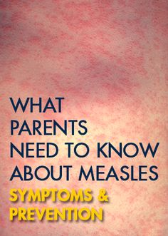 Adults fake measles in