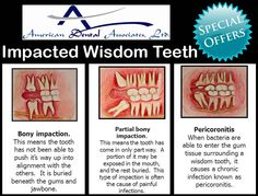 Causing Wisdom teeth problem!! Schedule appointment and get relief from your wisdom teeth pain,
