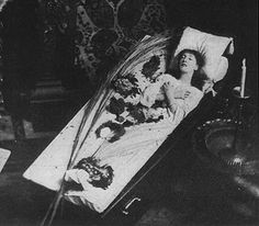 Conjoined Twins Post-Mortem | Early Post Mortem Photography: Dead Woman