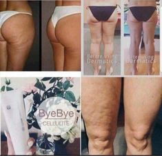 Who's trying to get rid of cellulite! This stuff is AMAZING! Send me a message! Say Bye, Healthy Skin Care, Send Me, Cellulite, Diabetes, Summertime, Nu Skin, Keto