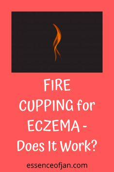 I Tried FIRE CUPPING for My Eczema What Is Cupping Therapy, Severe Eczema, Below The Surface, Traditional Chinese Medicine, Keep Trying, Does It Work, Blood Vessels, Skin Problems, Alternative Medicine