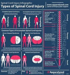 Occupational Therapist, Physical Therapist, Physical Therapy Student, Spinal Cord Injury, Spinal Cord Syndromes, Spinal Cord Anatomy, Spinal Decompression, Nursing Tips, Ob Nursing
