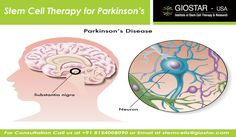 #Stem #Cell #Therapy for #Parkinson's  #Parkinson's disease is a chronic, progressive movement disorder associated with the abnormal functioning of the central nervous system. The disease generally comes under a group of condition known as motor system disorder. The disease is expressed due to the loss of dopamine-producing brain cells.  Email: stemcells@giostar.com Web: http://www.giostar.com/