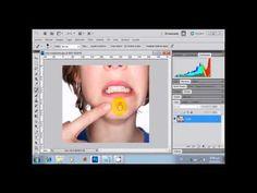 quitar barros y espinillas con photoshop cs5 - http://solucionparaelacne.org/blog/quitar-barros-y-espinillas-con-photoshop-cs5/