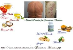 Granuloma Annulare Home Remedies