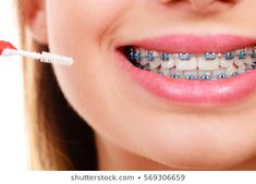 Braces are one of the main reasons why people have dental insurance. Kids braces can cost more then five thousand dollars. This hefty sum can make quite a dent Braces Cost, Braces Tips, Dental Braces, Teeth Braces, Cute Braces Colors, Getting Braces, Brace Face, Natural Teeth Whitening, Cosmetic Dentistry