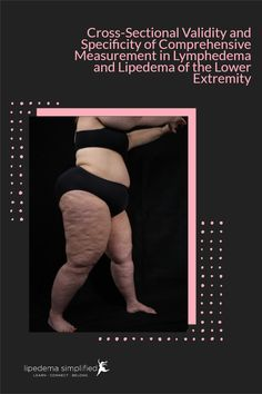 The paper is called: Cross-Sectional Validity and Specificity of Comprehensive Measurement in Lymphedema and Lipedema of the Lower Extremity: a Comparison of Five Outcome Instruments and was published in a peer-reviewed journal Health Quality and Life Outcomes in July 2020. This study aims to evaluate five instruments that can be used to assess the outcomes of treatment for lymphedema and lipedema. Peer Review, Being Used, Assessment, To Tell, Health Care, Instruments, Study, Author, Journal