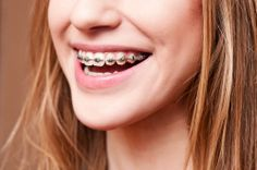 Healthy Snack Ideas for People With Braces?  Good Questions