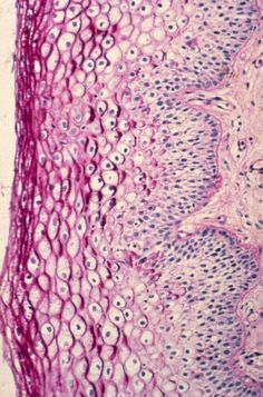 """Diethylstilbestrol (DES) Cervix Image from the publication """"An Atlas of Findings of Human Females: After Intrauterine Exposure to DES"""""""