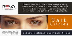 Dark Circles  Dark discoloration of the skin under the eye is mainly  referred to as dark circles. It is also known as dark rings  or shadows.Dark circles are not a serious skin problem,  but they make people look tired, exhausted, unhealthy.  Get safe treatment to your Dark Circles --> http://revami.in/skin.php#verticalTab8 #DarkCircles #DarkCirclesTreatment #Darkrings #SkinCare