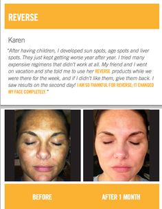 Reverse before and after. By Rodan and Fields for the Appearance of Brown Spots, Dullness and Discoloration.https://www.facebook.com/ngriffinrodanandfields