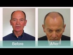 Hair Loss Patient undergoes an Advanced FUE Hair Transplant with Dr Raghu Reddy at The Private Clinic of Harley Street. Find our more about #hairloss and #hairtransplants at #theprivateclinic here: http://www.theprivateclinic.co.uk/treatments/hair-transplant/hair-transplant-men