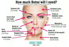 philadelphia skincare botox juvederm dysport restylane volbella vollure voluma thermage acne beauty latisse - Another! Botox Injection Sites, Botox Injections, Botox Fillers, Dermal Fillers, Lip Fillers, Relleno Facial, Botox Lips, Eyebrow Lift, Facial Anatomy
