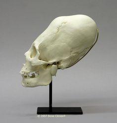 Human Skull, Peruvian Female, Cranial Binding (Replica)