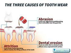 The 3 causes of tooth wear. Abrasion, Erosion & Attrition. Abrasion from over aggressive toothbrushing, most noticeably near the gum line. Dental Erosion from an acidic diet or stomach acids, affecting every exposed tooth surface, and Attrition from tooth contact/grinding, which affects mainly the biting surfaces of the teeth.