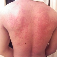 Hives Causes And Symptoms