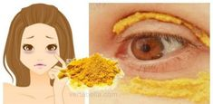 Put turmeric around the eyes, wait for 10 minutes, something incredible will happen! Turmeric has a special place in Indian cuisine because of its golden . Skin Care Regimen, Skin Care Tips, Tips Belleza, Skin Problems, Dark Circles, Turmeric, Tumeric Face, Natural Remedies, Beauty Hacks